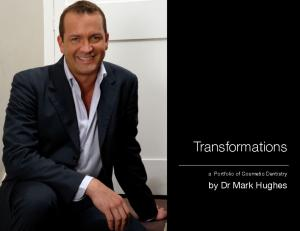 Transformations. a Portfolio of Cosmetic Dentistry. by Dr Mark Hughes