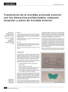 Tratamiento de la mordida profunda anterior con los elementos prefabricados: relajante muscular y plano de mordida anterior