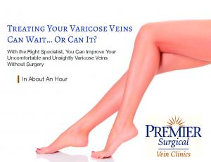 Treating Your Varicose Veins Can Wait Or Can It?