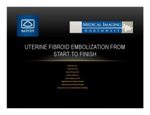 UTERINE FIBROID EMBOLIZATION FROM START TO FINISH