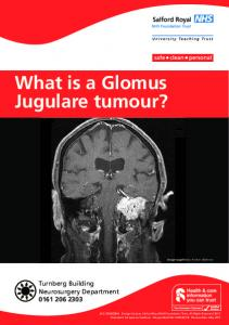 What is a Glomus Jugulare tumour?
