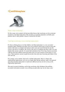 What is hip resurfacing? Total hip resurfacing versus total hip replacement