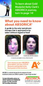 What you need to know about ABSORICA